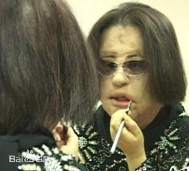 韩国女性韩苗可(音译)自从28岁那年接受了第一次整容手术后,从此就患