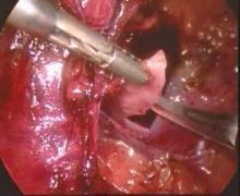 肾囊肿切除术图册