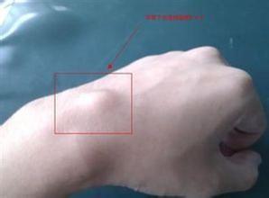 手腕腱鞘炎怎么治疗图片
