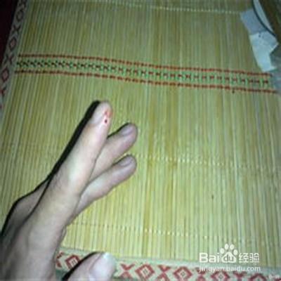 切了手的照片_如何防止切菜切到手