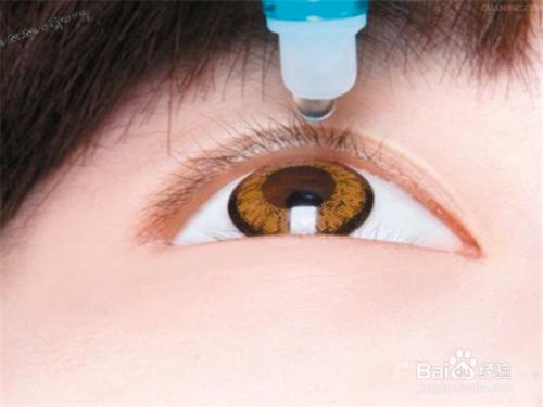 干眼症的预防与治疗