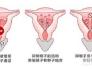宫内节育器原理
