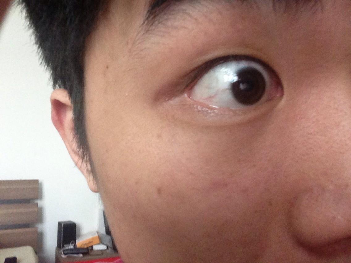 眼球血丝_眼睛有血丝而且有点黄