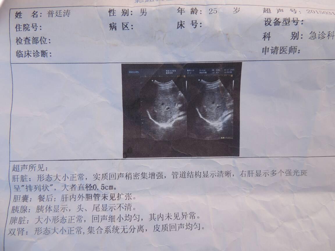 中医治肝囊肿方法