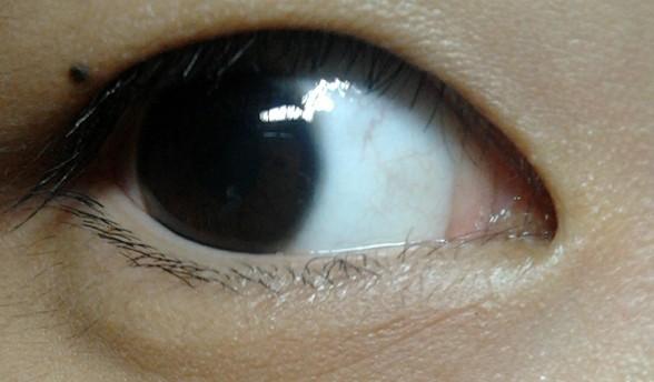 眼睛充血但是不痛不痒_眼睛旁边的表皮有点胖起来不痛不痒