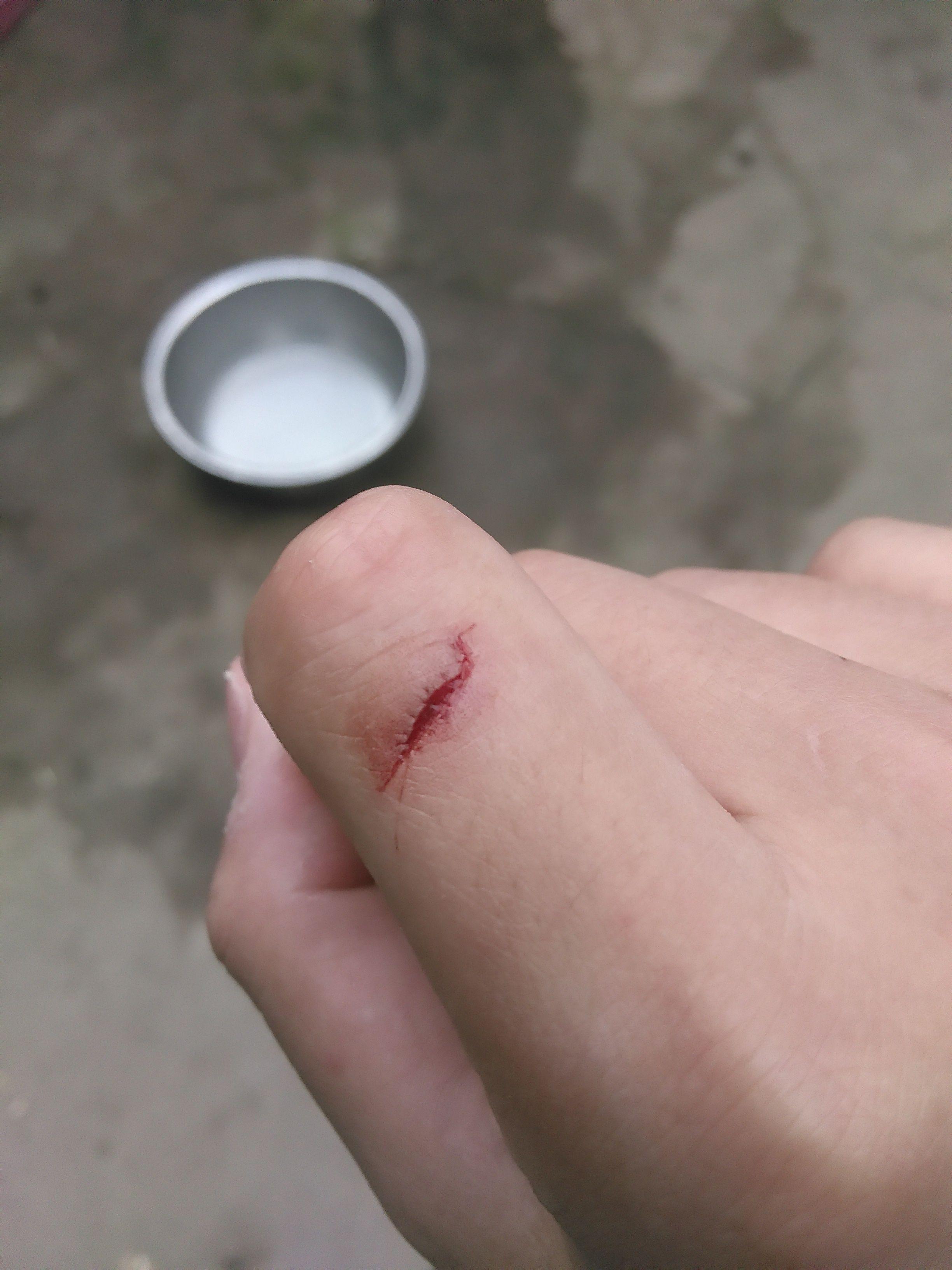 我的手破了一个口子,当是飚血不止图片