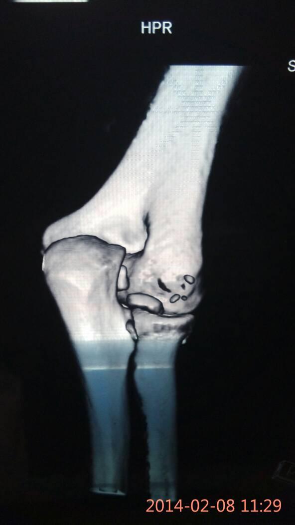 一年前我摔倒胳膊肘关节骨碎了,骨头有点缺失,当时手术订回去了,当时图片