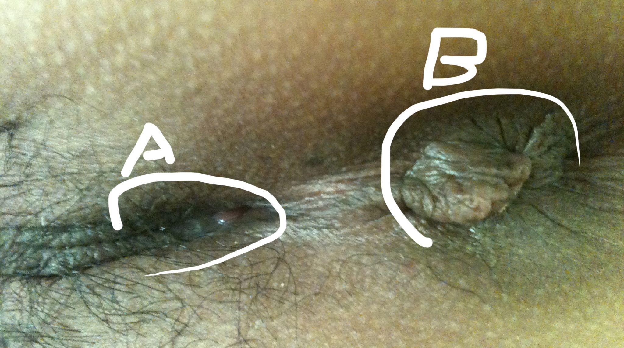 捅b什么感觉_ 是怎么回事 怎么办    b肛门感觉长得不太