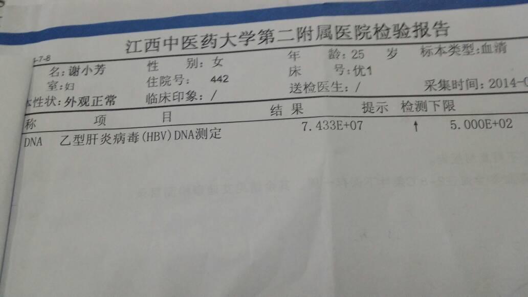 乙肝肝功能异常症状_刘辉东 医师 乙肝大三阳患者dna病毒检查为10的8次方,肝功能异常,.