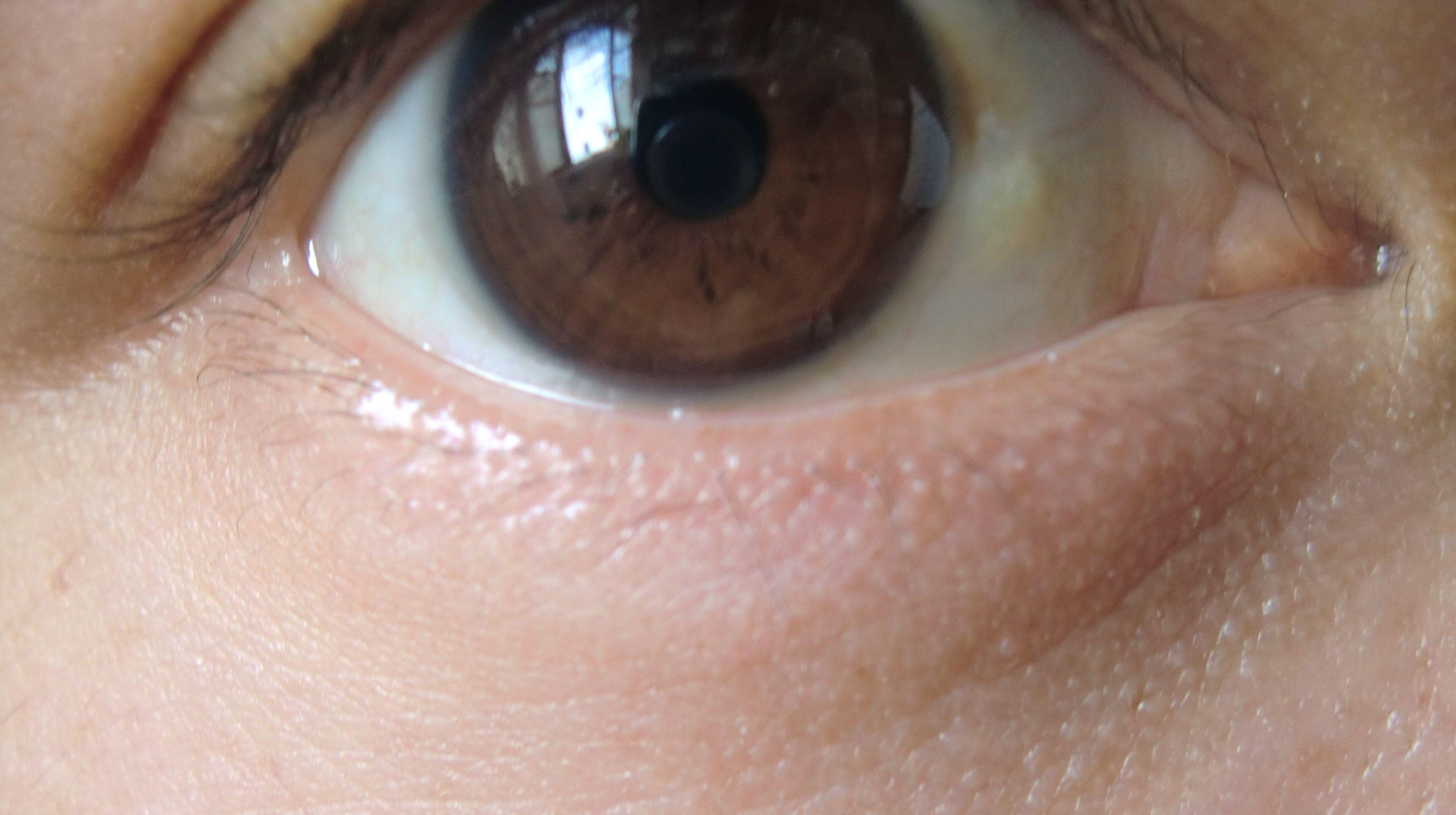 眼球上长了个白色疙瘩_白眼球上有黄斑是什么原因-www.38xf.com-三八女性网;