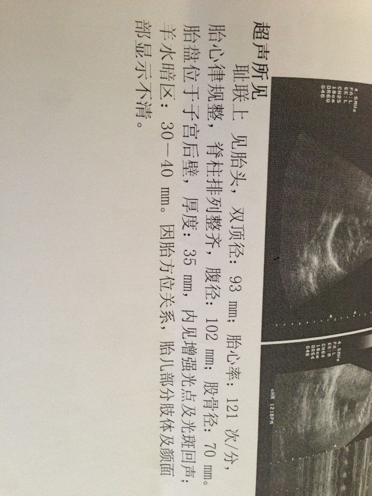 三个月胎儿图 三个月胎儿彩超视频 三个月胎儿四维彩超图片