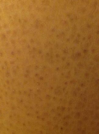鱼鳞皮肤_问:请问看我的皮肤病是属于哪种,毛周角化症还是鱼鳞病,内图?