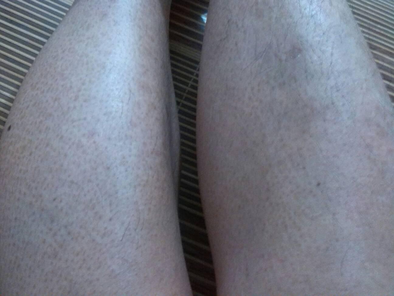 鱼鳞状皮肤_1 2007-12-29 我的皮肤特别干,冬天还会脱皮,是鱼鳞病吗?
