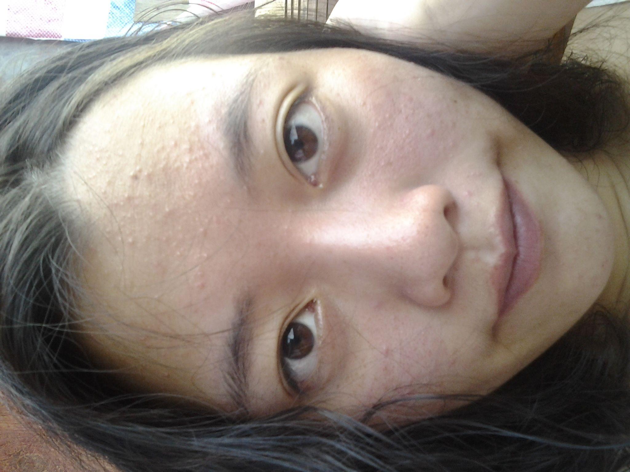 脸上有小米粒疙瘩_很小的皮肤色小疙瘩,不痛不痒,但是一挤里面有小米粒状颗粒