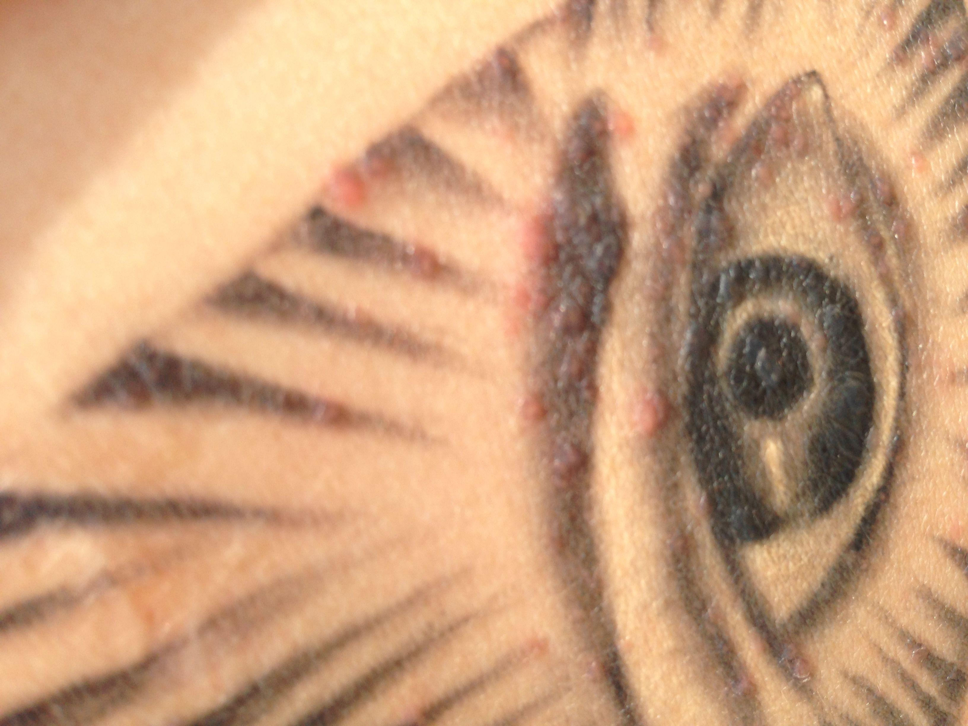 纹身后,纹身部位出现红疙瘩图片