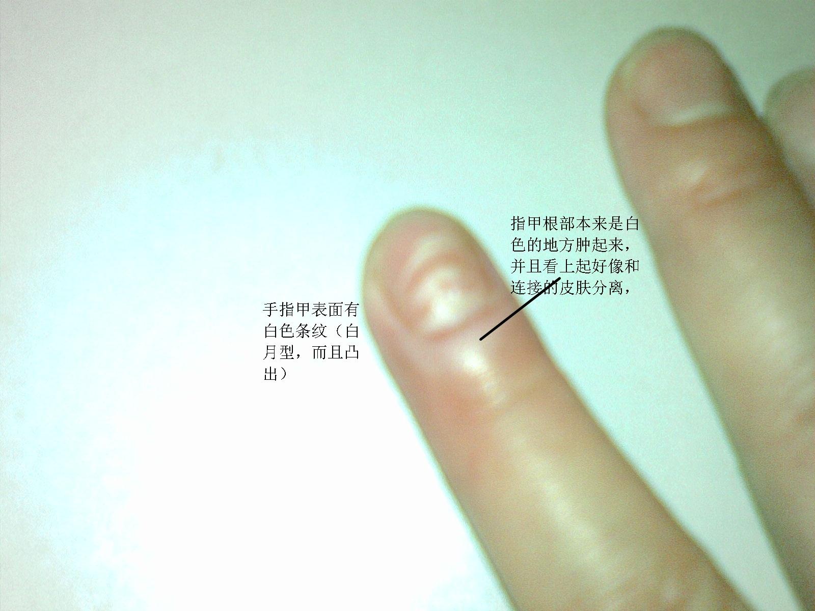 白白色潮吹影院_手指甲出现白色的横纹【为我的妈妈问一下,请大家帮帮忙,谢谢啦】
