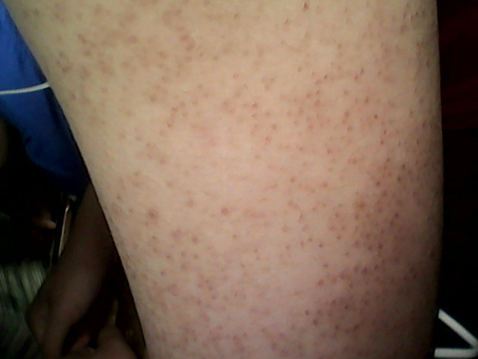 这是什么皮肤病?胳膊上长黑头红底的疙瘩图片