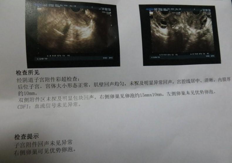 怀孕三胞胎做b超图片