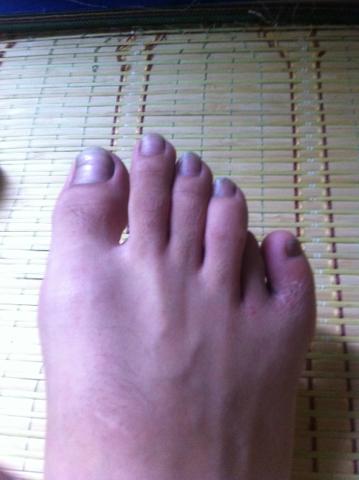 手指甲和肉分离了,而且一直不见好,分离部分呈白色,看