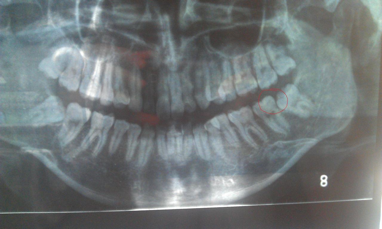 关于智齿缝隙发臭的问题
