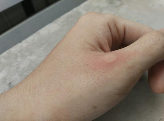 刚刚打球被蚂蚁咬了,是不是红火蚁,现在起泡了