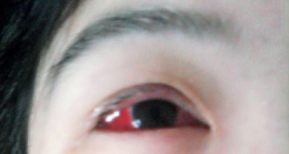 眼球上长了个白色疙瘩_谁能告诉我眼睛旁边为什么长了这些白色的小痘痘