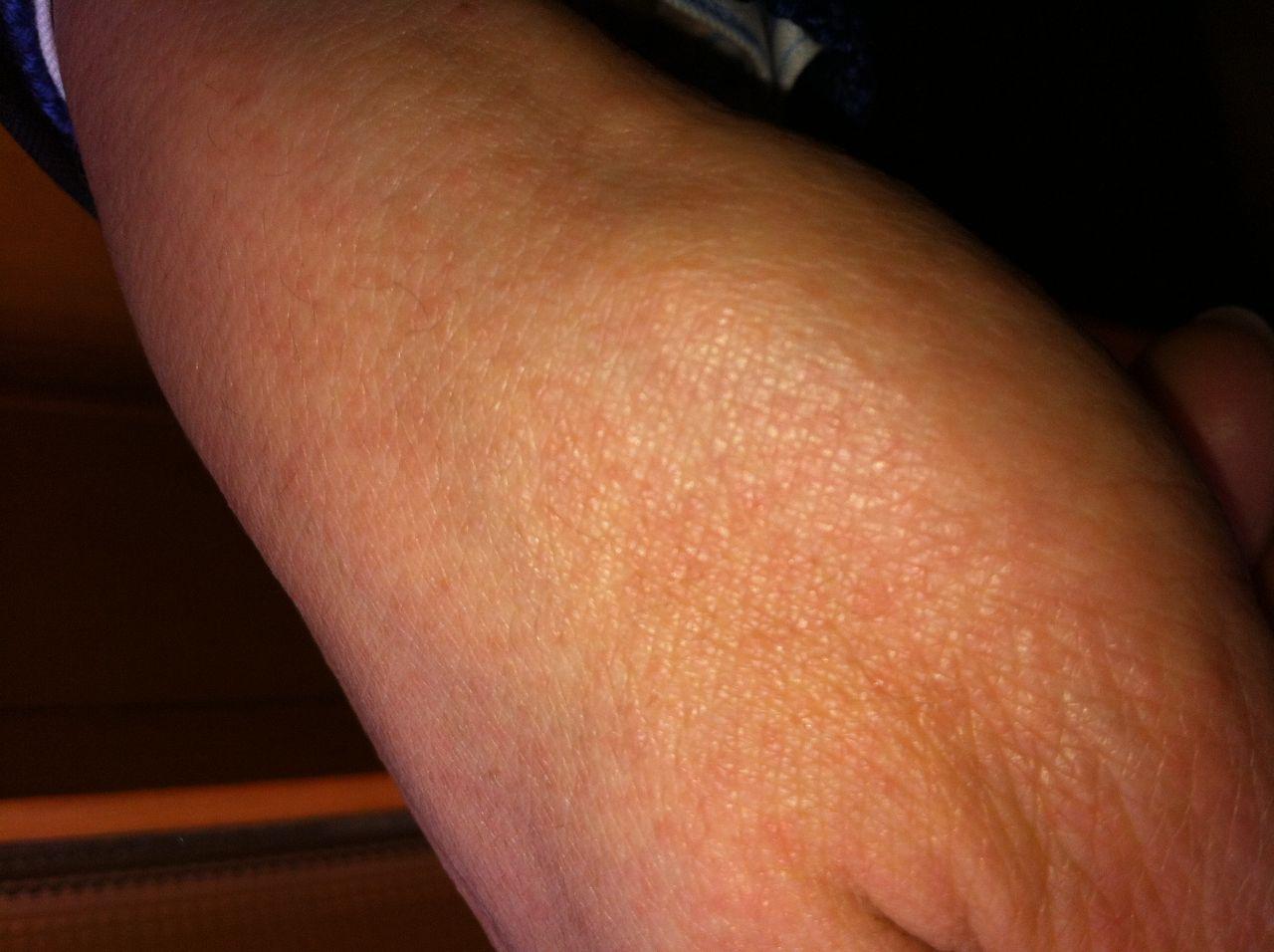 请问这是什么皮肤病?是过敏吗?