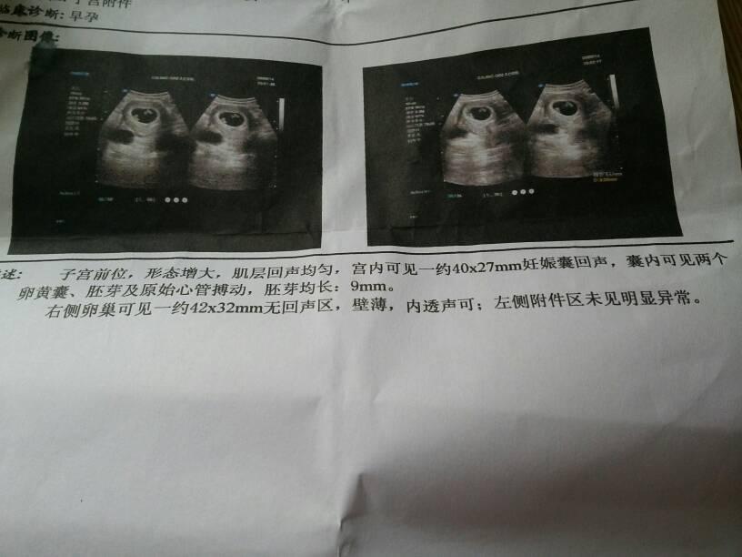 2014-01-31 郭凤月 医师 我在怀孕43天去做b超,现在97天又做了一次了