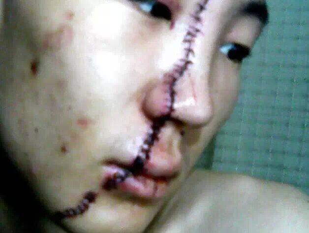脸上被砍伤,现条状疤痕明显,单条约15厘米左右.请问能否构成重伤害?