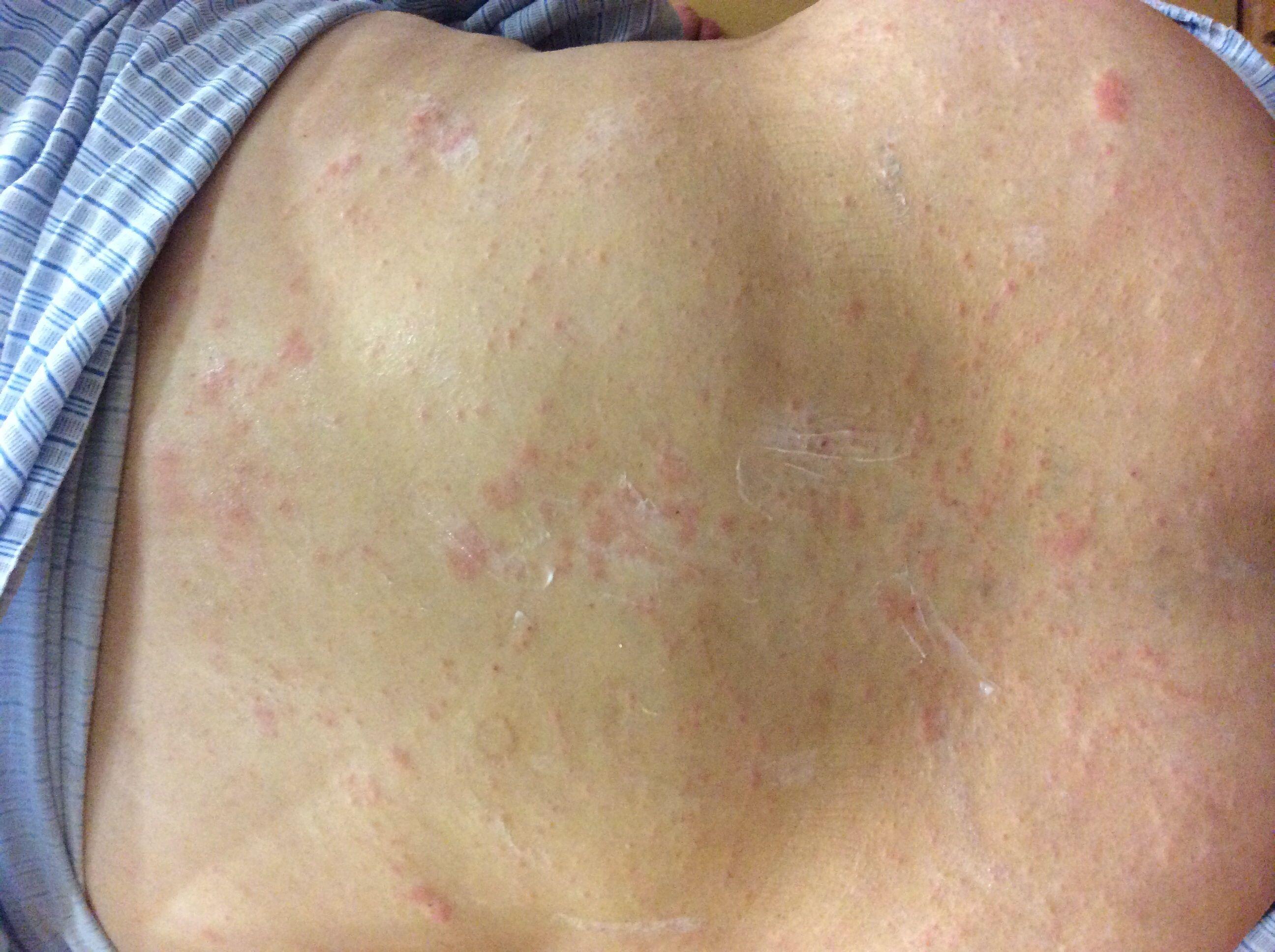 过敏也可能是湿疹等为了确诊一到底是什么皮肤病