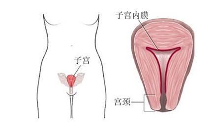 子宫形状不好怎么办