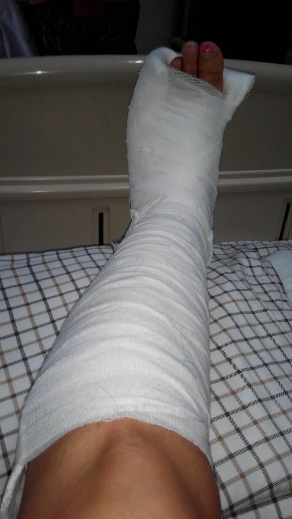 点多拿拿铁棍打的脚骨折