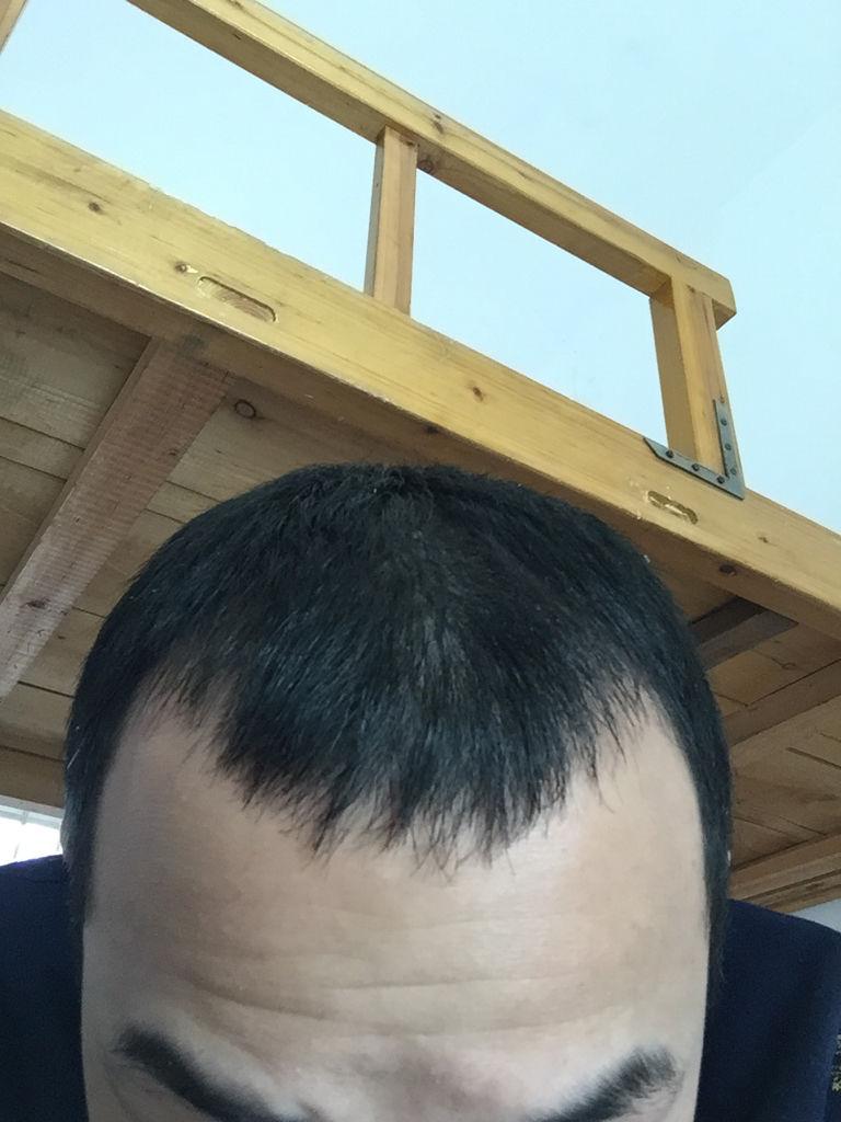掉头发还能长出来吗 脱发还会再长出来吗?图片