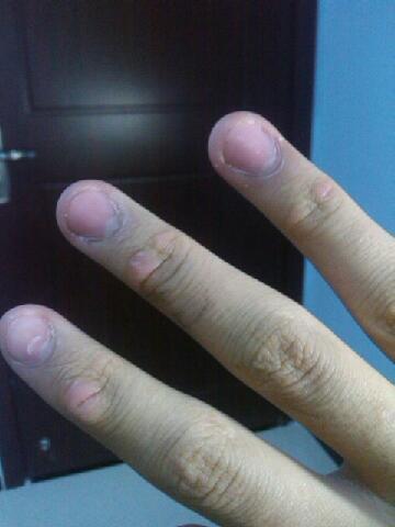 同问我的手指关节因为经常按现在变得红肿,粗大,怎样才能变回原来