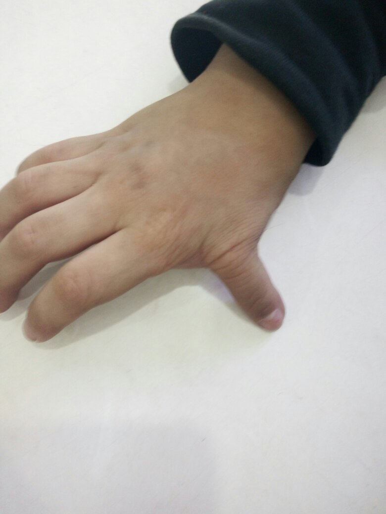 我儿子天生右手六指小时候做手术把一根没用的手指切掉了但大拇指还是