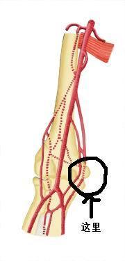 胳膊在弯曲的时候,肘部内侧有筋在骨头上滑动,图上的位置,已经两个多图片