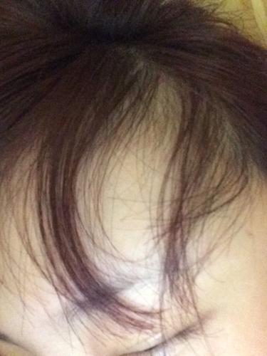 掉头发,头皮屑增多,刘海旁边都要秃了还有疙瘩怎么办图片