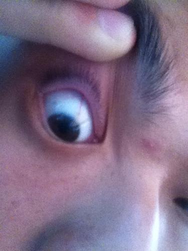 黑眼球上有个白点图片_我的黑眼珠上半部分和眼白连接处出现了月牙状白斑,请问什么病?