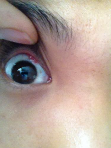 眼睛充血但是不痛不痒_问:眼睛里长了一快小红肉不痛不痒有时候会感觉眼睛里有东西