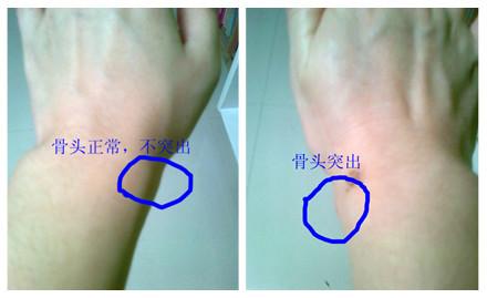 桡骨茎突腱鞘炎图片