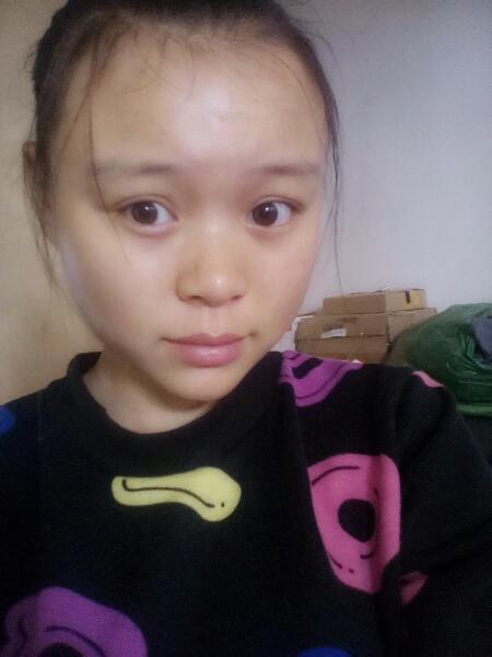 前额头头发稀少,不再长出来 我才十九岁啊,怎么办