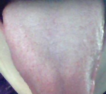 宝宝舌头白疮图片