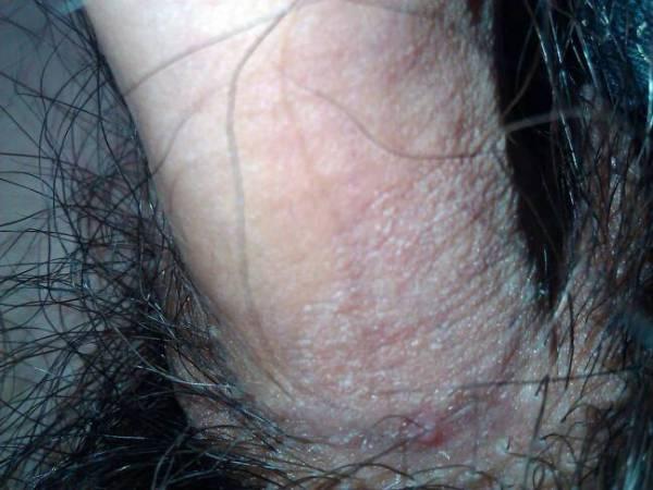 阴茎根部这块皮肤瘙痒,起皮,痒的不厉害,