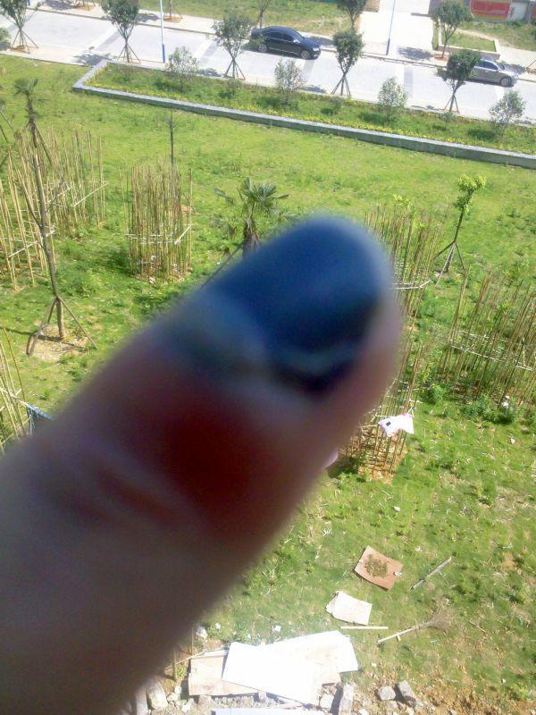 手指甲被夹