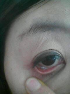 眼睛充血但是不痛不痒_眼睛里长了个大水泡,10年前长的,不疼不痒.