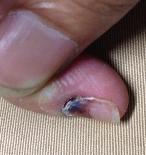 手指压伤20天后,伤口结痂脱落,小拇指甲根部淤血部分与肉分离,