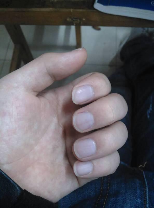 手指甲呈只紫黑色,是贫血症状吗做 还是怎