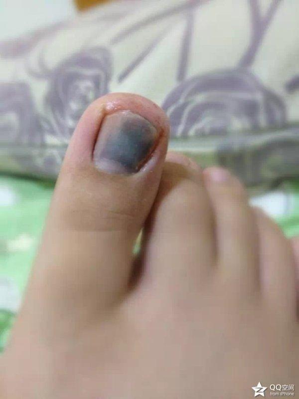 脚趾甲淤血发黑怎么办?_百度知道