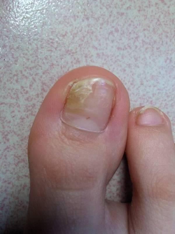 手指甲发紫 大脚趾指甲空了 肝脏不好指甲症状