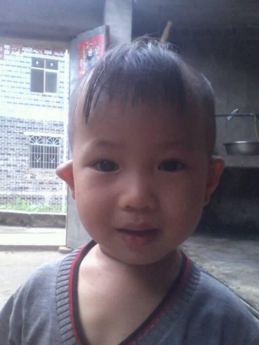 耳朵畸形能整形吗?图片